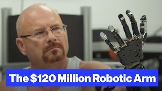 getlinkyoutube.com-The Robot-Arm Prosthetic Controlled by Thought
