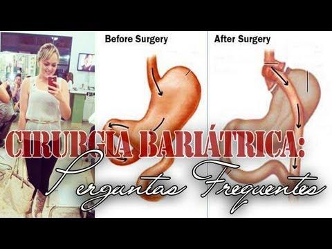 Cirurgia Bariátrica: Perguntas Frequentes