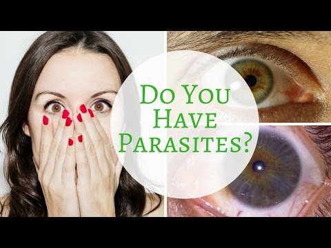 A Way You Can Tell If You Have Parasites Via Iridology!