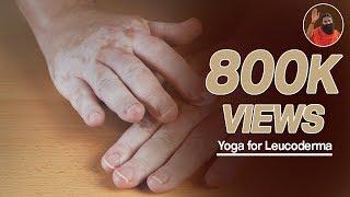 getlinkyoutube.com-Yoga for leucoderma (सफेद दाग) | Swami Ramdev  (Part 1)