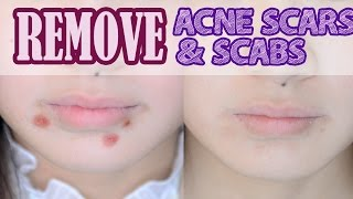 getlinkyoutube.com-How to: Remove Acne Scars & Scabs