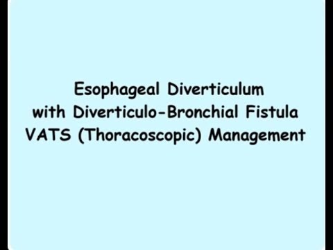 Esophageal Diverticulum with Diverticulo bronchial Fistula  VATS (Thoracoscopic) Management