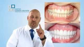getlinkyoutube.com-Dental Crowns Procedure In Mexico Explained