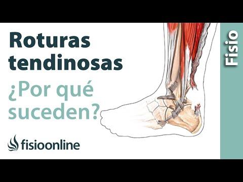 Roturas tendinosas - Cómo suceden y cuáles son sus causas.