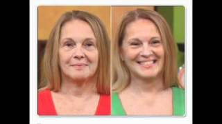 getlinkyoutube.com-90 Second Face Lift Instant Results as seen on Rachel Ray