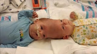 getlinkyoutube.com-Doctors perform risky surgery to separate conjoined twins