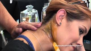 getlinkyoutube.com-Waxing the back of the neck, face, hairline hard wax10