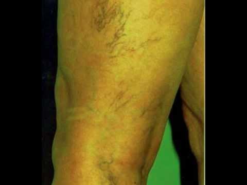 العلاج بالأعشاب 06# دوالي الساقين
