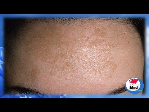 Remedios caseros para tratar el melasma o paño en la piel