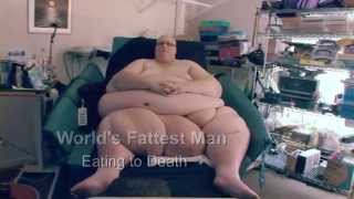 getlinkyoutube.com-The World's Fattest Man - Fat Doctor