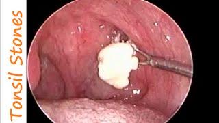 getlinkyoutube.com-Huge Tonsil Stones Removal in a case of Chronic Tonsillitis & Allergic Rhino Sinusitis