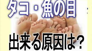 getlinkyoutube.com-荘 貴雄のタコ・魚の目改善法 動画