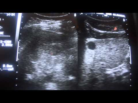 ULTRASOUND CYST vs SOLID MASS