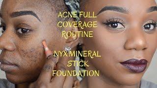 getlinkyoutube.com-Acne Coverage Foundation Routine for Dark Skin | NYX Mineral Stick Foundation | Stephanie Sekhmina
