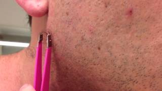 getlinkyoutube.com-The Longest Grossest Ingrown Hair In History