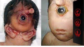 getlinkyoutube.com-Las 10 condiciones médicas más extrañas del mundo