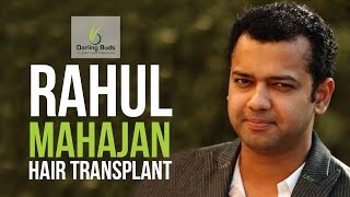 getlinkyoutube.com-Rahul Mahajan Hair Transplant with Dr Tejinder Bhatti Darling Buds Chandigarh