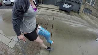 Low profile crutches camera! blue long leg cast