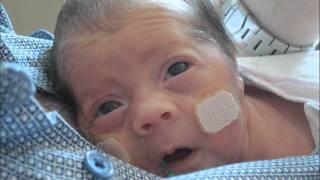 getlinkyoutube.com-Our Miracle Babies
