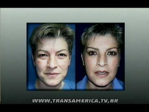 Tv Transamérica - Blefaroplastia ou cirurgia de palpebra