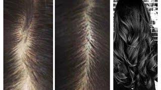 getlinkyoutube.com-Como acabar com a queda de cabelo!