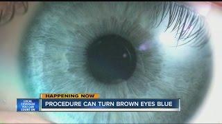 getlinkyoutube.com-Procedure can turn brown eyes blue