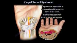 getlinkyoutube.com-Carpal Tunnel Syndrome - Everything You Need To Know - Dr. Nabil Ebraheim