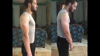 getlinkyoutube.com-التخلص من تقوس الظهر نهائيا - Fix Posture