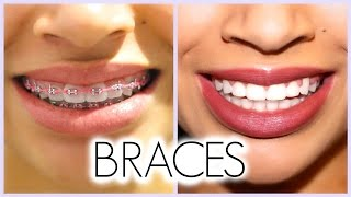 getlinkyoutube.com-MY 3 YEAR BRACES EXPERIENCE!! (Before/After + Q & A)
