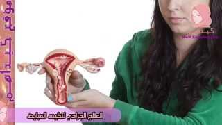 العلاج الجراحي لتكيس المبايض | تكيس المبايض وعلاجه جراحياً - كيداهم HD