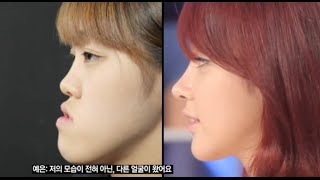 Amazing Surgery Review! Korea Plastic Surgery Before and After, Let Me In Huh Ye Eun