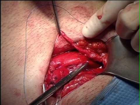 Plastica inguinale con protesi leggera e colla  biologica di fibrina