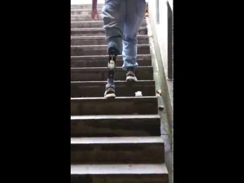 Treppe laufen mit Otto Bock Genium Kniegelenk