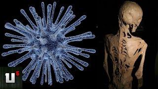 getlinkyoutube.com-5 Highly Unusual & Rare Diseases & Disorders