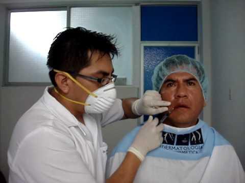 Aumento de labios, relleno de labios en hombres con acido hialuronico por Dermatologo en Lima