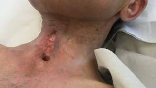 PEG vis pharungo-cutaneous fistula