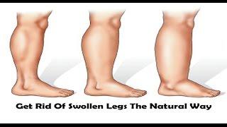 पैरों की सूजन का आसान और अचूक इलाज