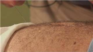 getlinkyoutube.com-Acupuncture Treatments : Acupuncture for Erectile Dysfunction