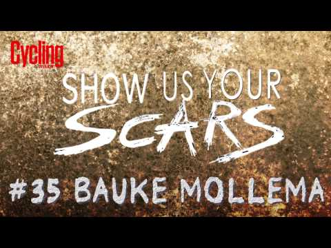 Show us your scars: Bauke Mollema #35