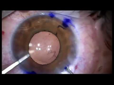 Final Alignment and Removal of VEM After Acriva Reviol Multifocal Toric Implantation