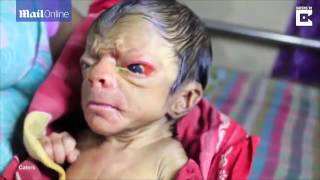 getlinkyoutube.com-MUST WATCH! A New Born Baby Looking Like An 80 Year Old Man Full Of Back Hair