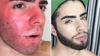 ADEUS manchas e buraquinhos de acne (PEELING 3D) - UMA RAPIDINHA