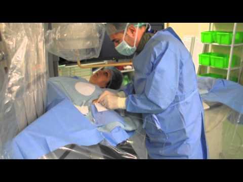 ARES | Embolizarea Fibroamelor Uterine UFE | Dr. Rares Nechifor