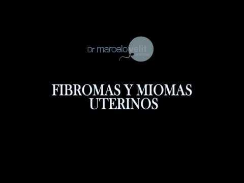FIBROMAS Y MIOMAS UTERINOS