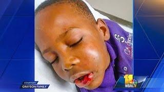 getlinkyoutube.com-Teacher Breaks Jaw Of 'Disruptive' 7-Year-Old Student