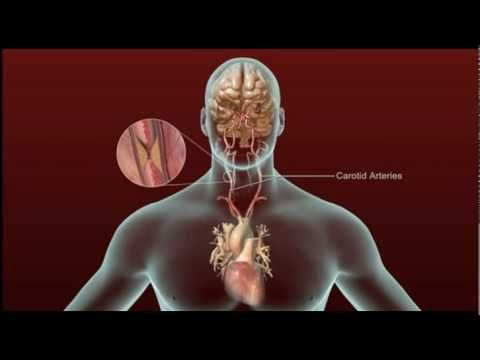 Stroke - Carotid Artery Disease and TIA