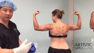 getlinkyoutube.com-Celebrity Arms - High Definition Arm Liposuction - 5 | Expert Dr. Su