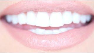 getlinkyoutube.com-How to Get Really White Teeth For Cheap | Kandee Johnson