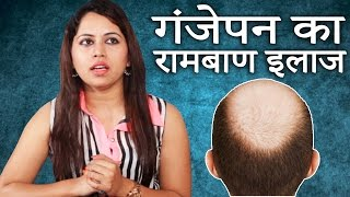 getlinkyoutube.com-Ganjapan Ka Pakka Ilaj│गंजापन से छुटकारा पाने के आसान घरेलू उपाय │ Imam Dasta│Home Remedies in Hindi