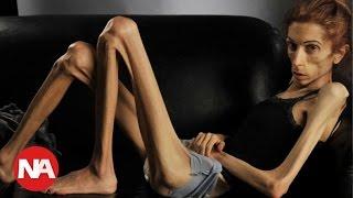 getlinkyoutube.com-Rachael Farrokh la mujer más delgada del mundo